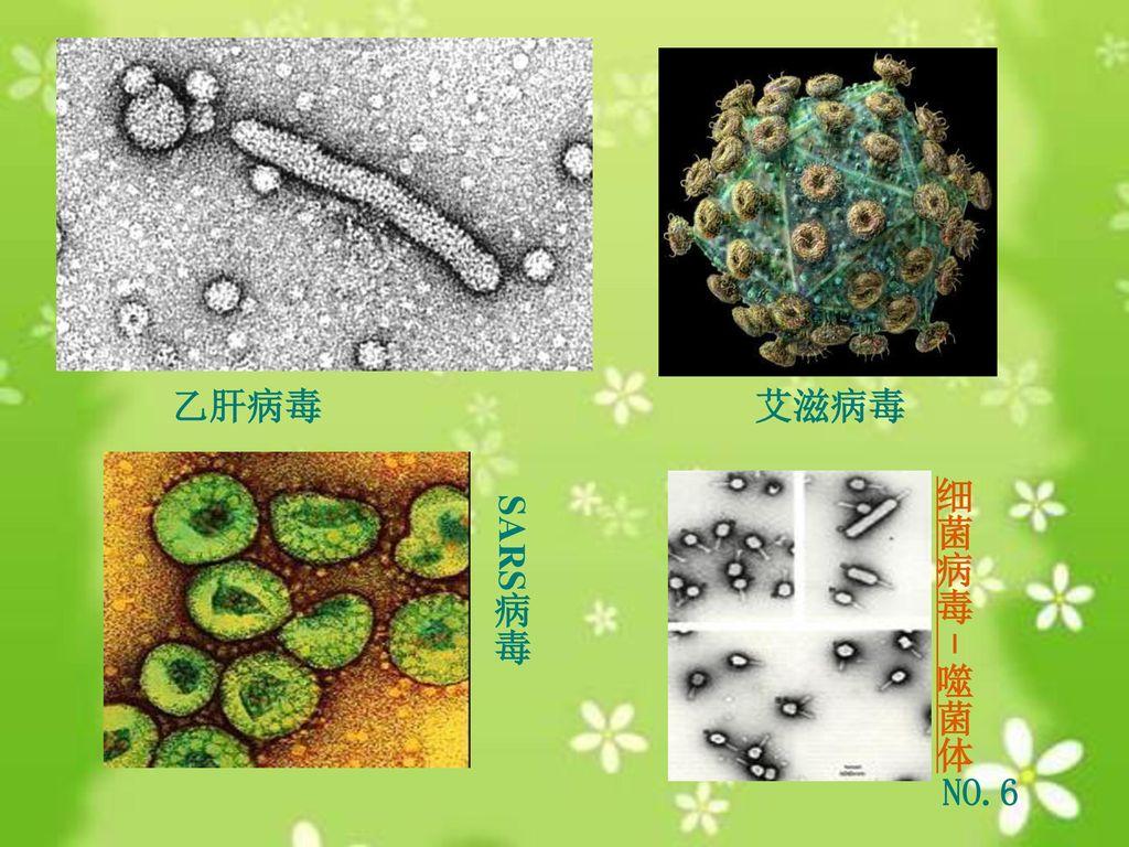 乙肝病毒 艾滋病毒 细菌病毒-噬菌体 SARS病毒 NO.6