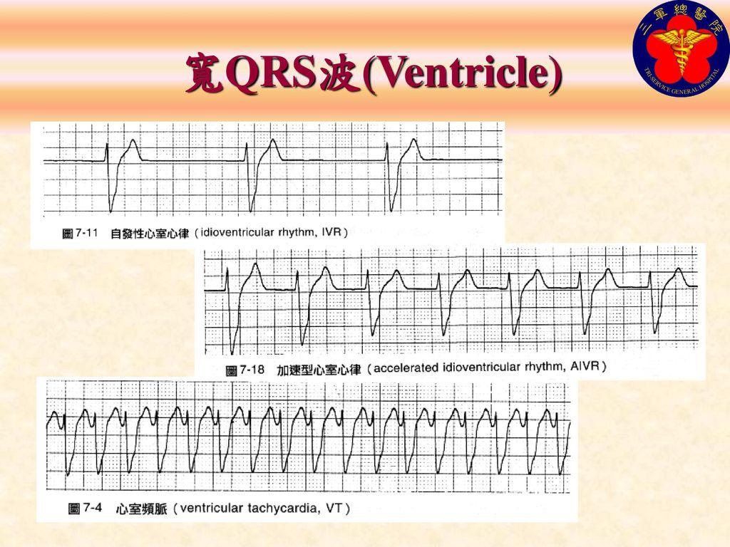 寬QRS波(Ventricle)