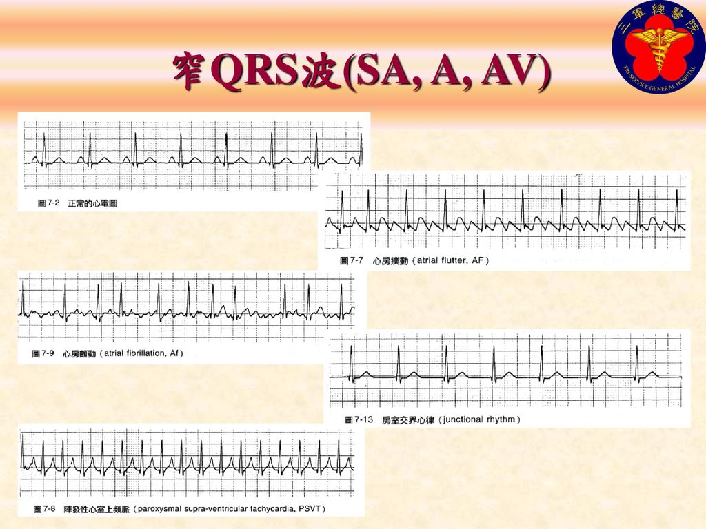 窄QRS波(SA, A, AV)