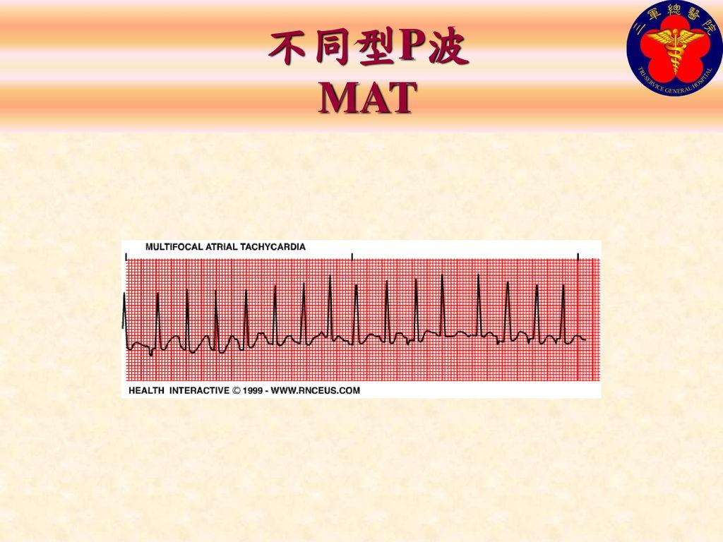 不同型P波 MAT