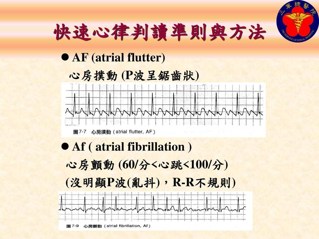 快速心律判讀準則與方法 AF (atrial flutter) 心房撲動 (P波呈鋸齒狀)