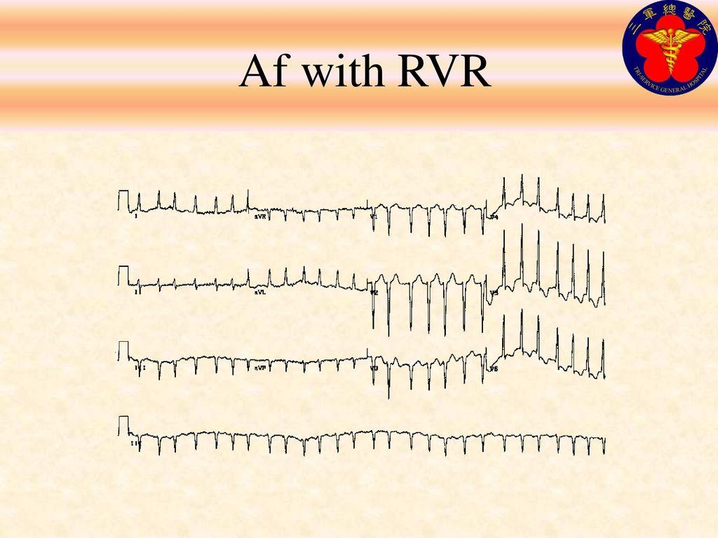 Af with RVR