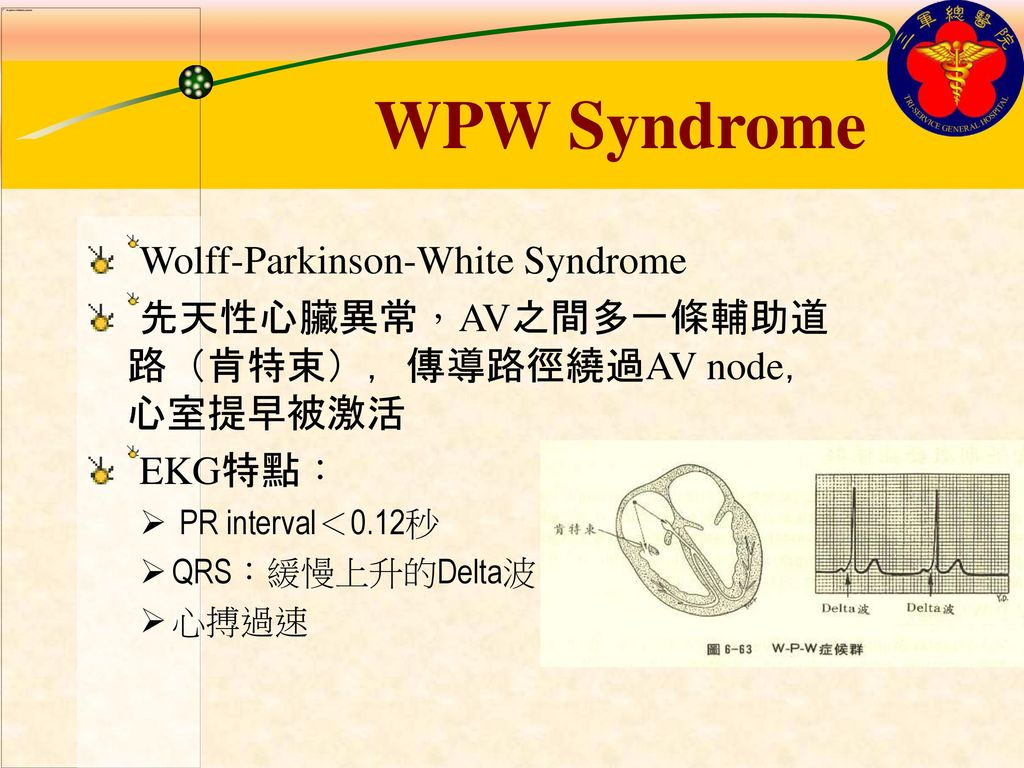 WPW Syndrome Wolff-Parkinson-White Syndrome