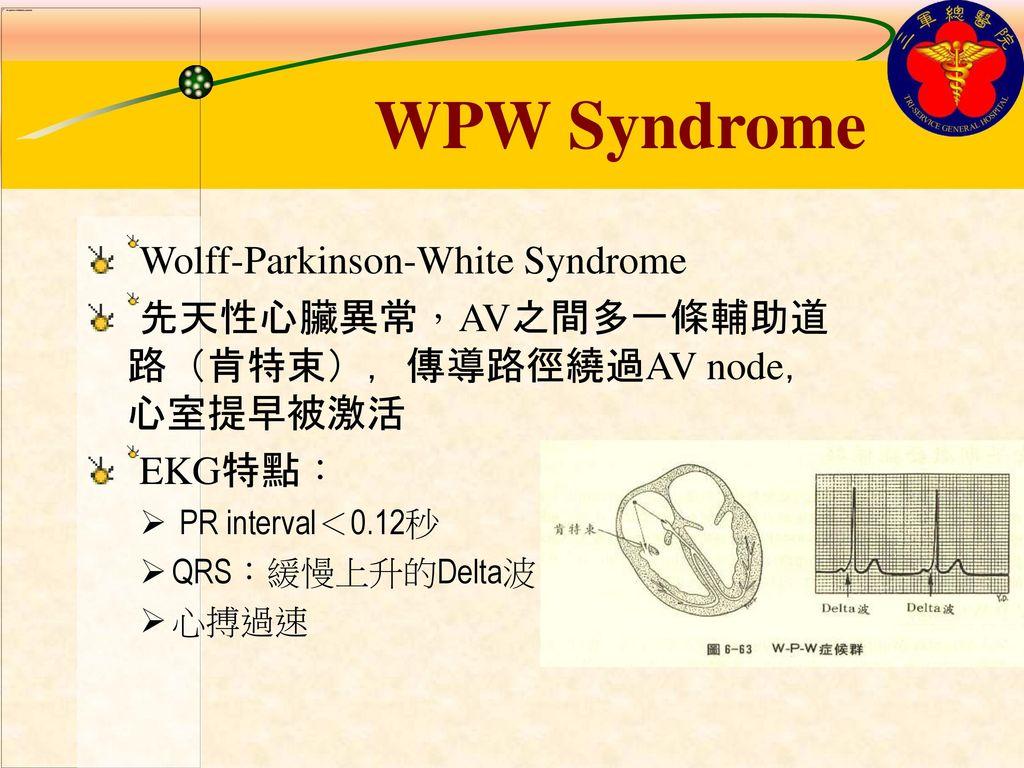 WPW Syndrome Wolff-Parkinson-White Syndrome