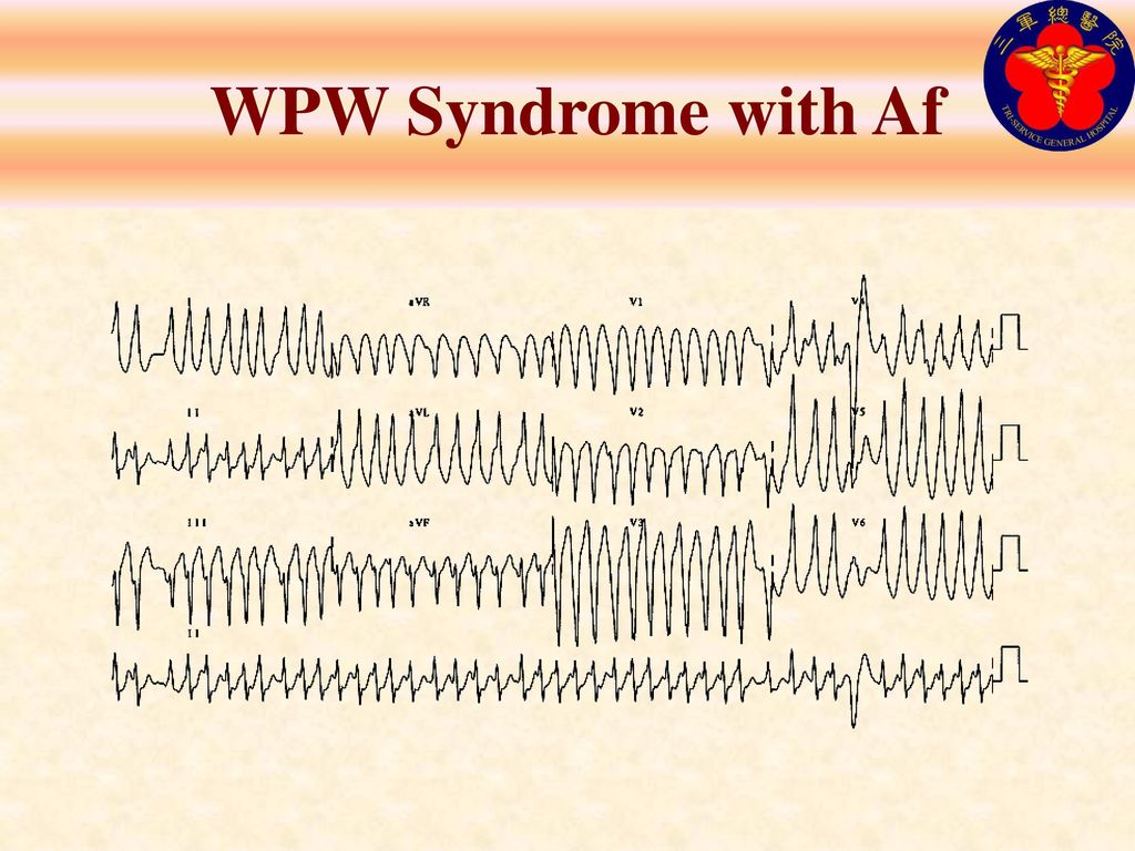 WPW Syndrome with Af