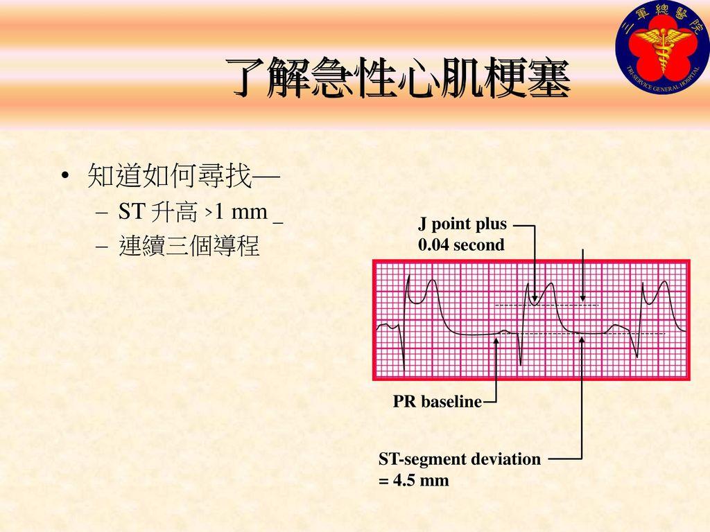 了解急性心肌梗塞 知道如何尋找— ST 升高 >1 mm 連續三個導程 J point plus 0.04 second