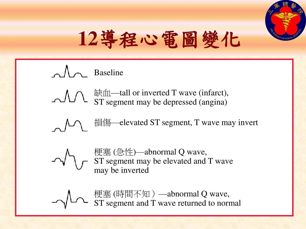 12導程心電圖變化 Baseline. 缺血—tall or inverted T wave (infarct), ST segment may be depressed (angina) 損傷—elevated ST segment, T wave may invert.