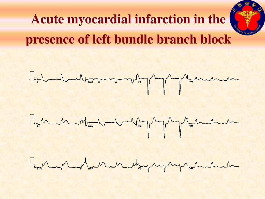 Acute myocardial infarction in the presence of left bundle branch block