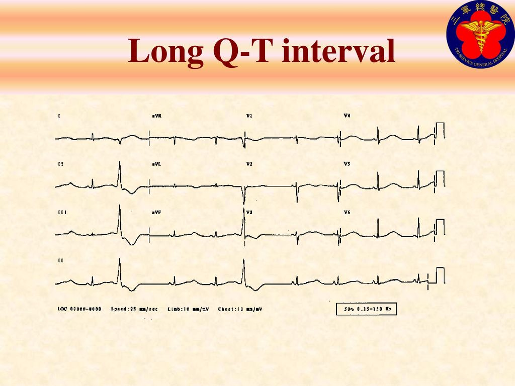 Long Q-T interval