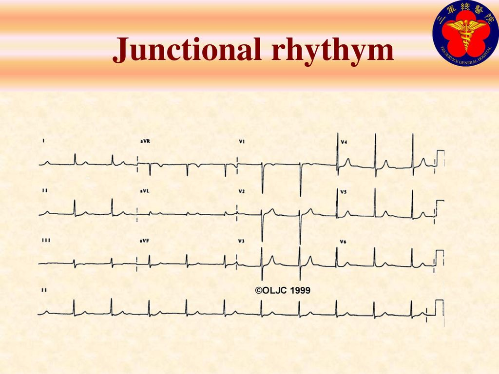 Junctional rhythym