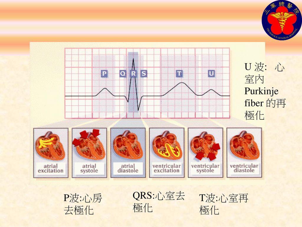 U 波: 心室內 Purkinje fiber 的再極化