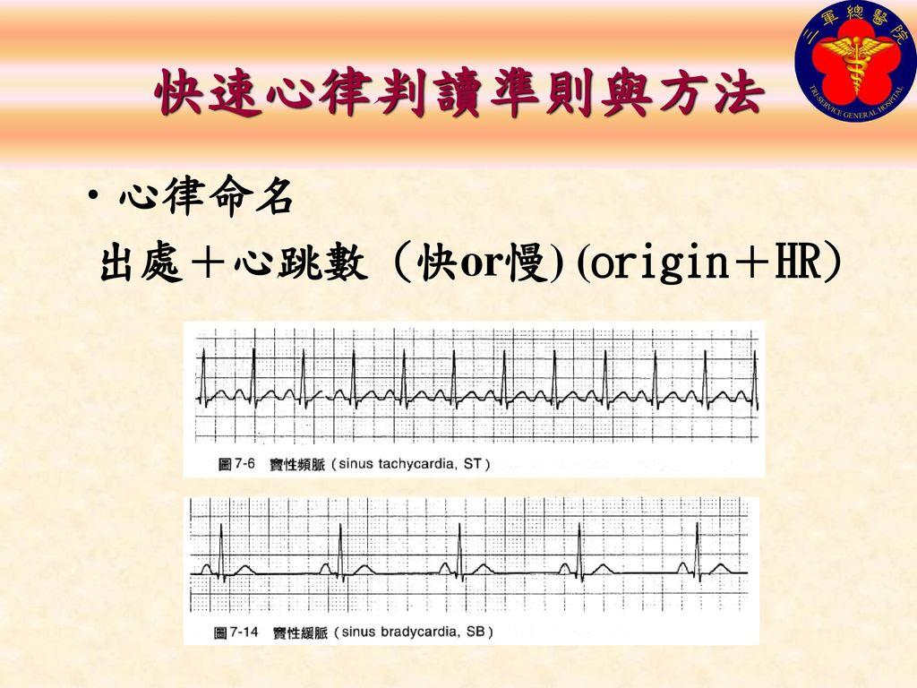 快速心律判讀準則與方法 心律命名 出處+心跳數 (快or慢) (origin+HR)