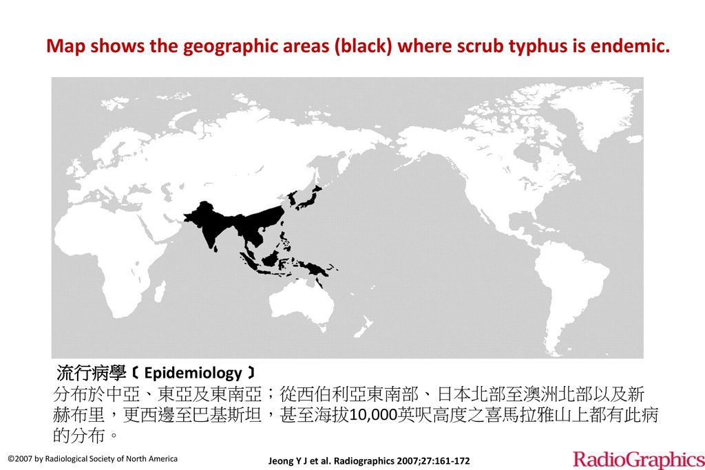 Map shows the geographic areas (black) where scrub typhus is endemic.