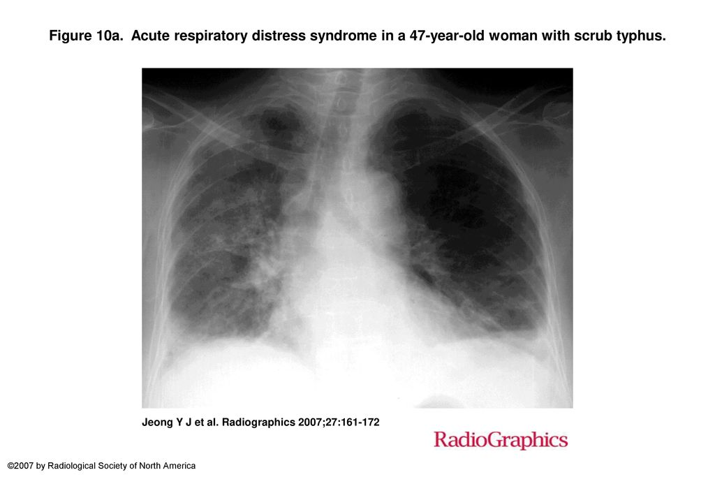 Figure 10a. Acute respiratory distress syndrome in a 47-year-old woman with scrub typhus.
