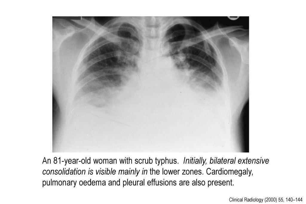 An 81-year-old woman with scrub typhus