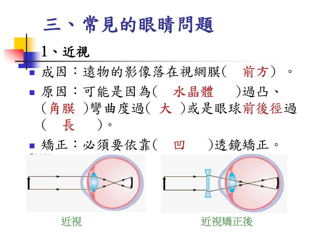 三、常見的眼睛問題 成因:遠物的影像落在視網膜( 前方) 。