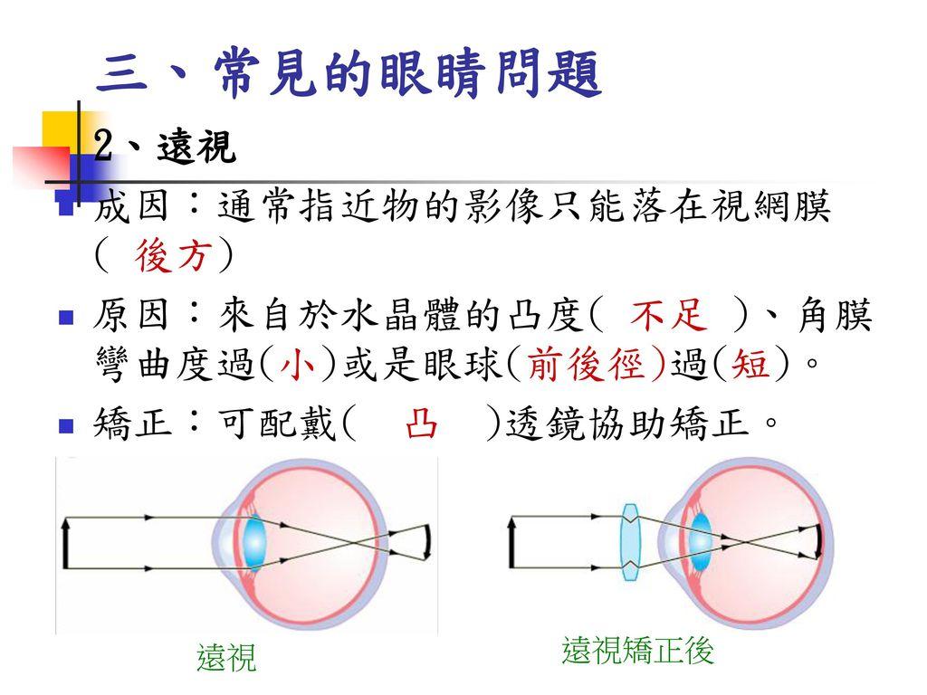 三、常見的眼睛問題 成因:通常指近物的影像只能落在視網膜 ( 後方)