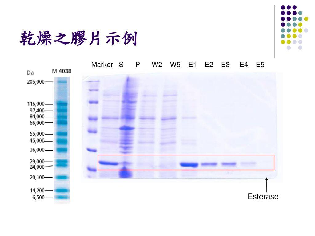 乾燥之膠片示例 Marker S P W2 W5 E1 E2 E3 E4 E5 Esterase