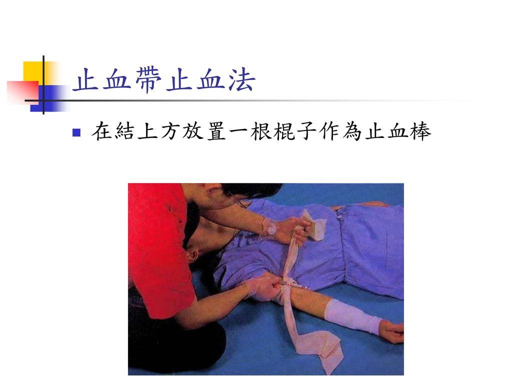 止血帶止血法 在結上方放置一根棍子作為止血棒