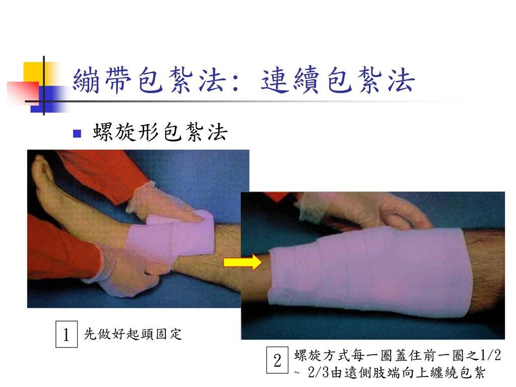 繃帶包紮法: 連續包紮法 螺旋形包紮法 1 2 先做好起頭固定 螺旋方式每一圈蓋住前一圈之1/2 ~ 2/3由遠側肢端向上纏繞包紮