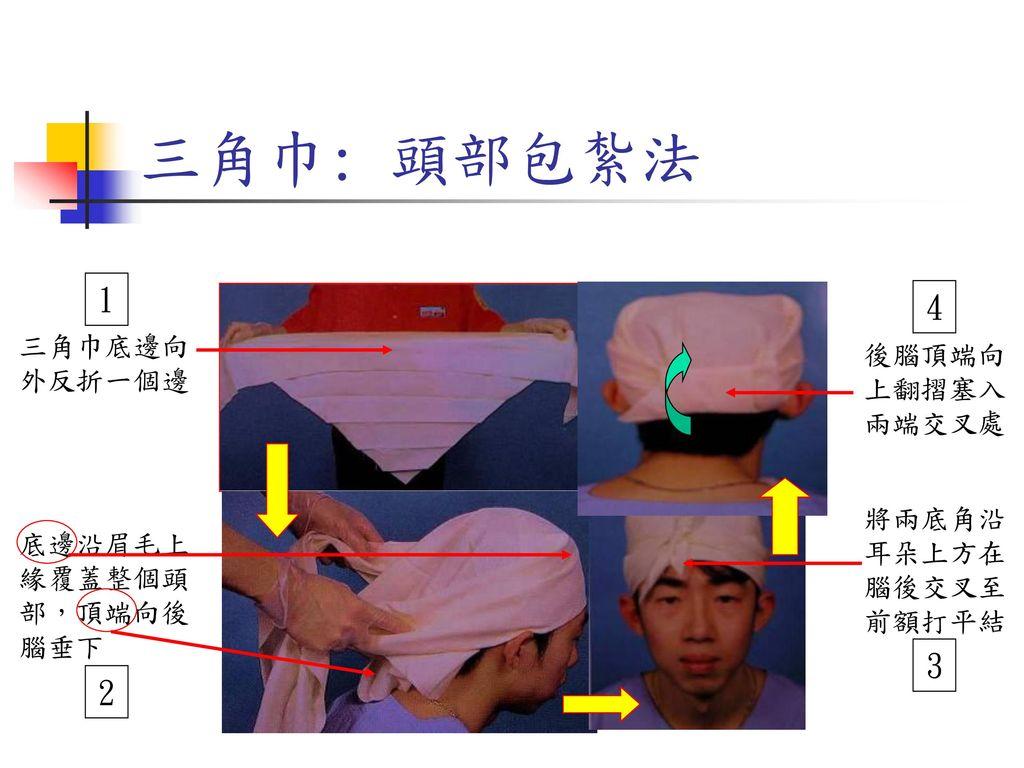 三角巾: 頭部包紮法 1 4 3 2 三角巾底邊向外反折一個邊 後腦頂端向上翻摺塞入兩端交叉處 將兩底角沿耳朵上方在腦後交叉至前額打平結