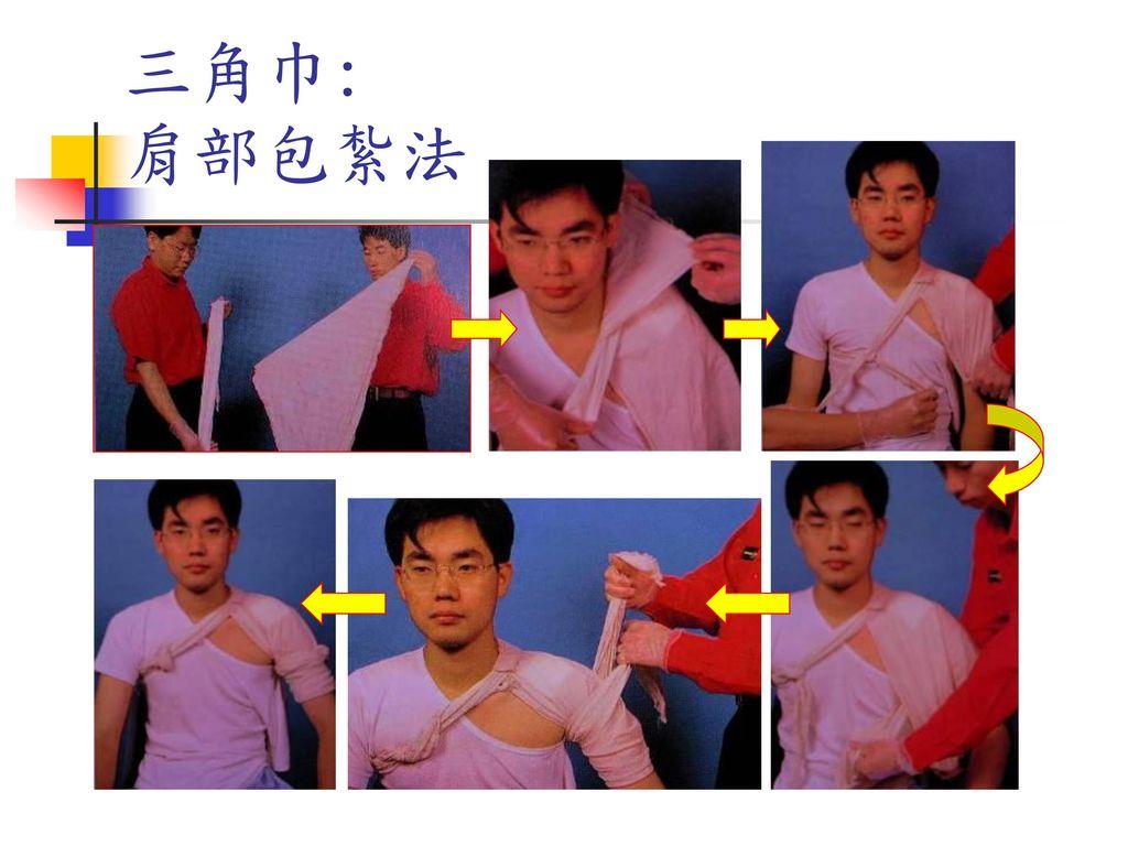 三角巾: 肩部包紮法 二條摺1/3頂外翻繞頸繞肩回上臂打結