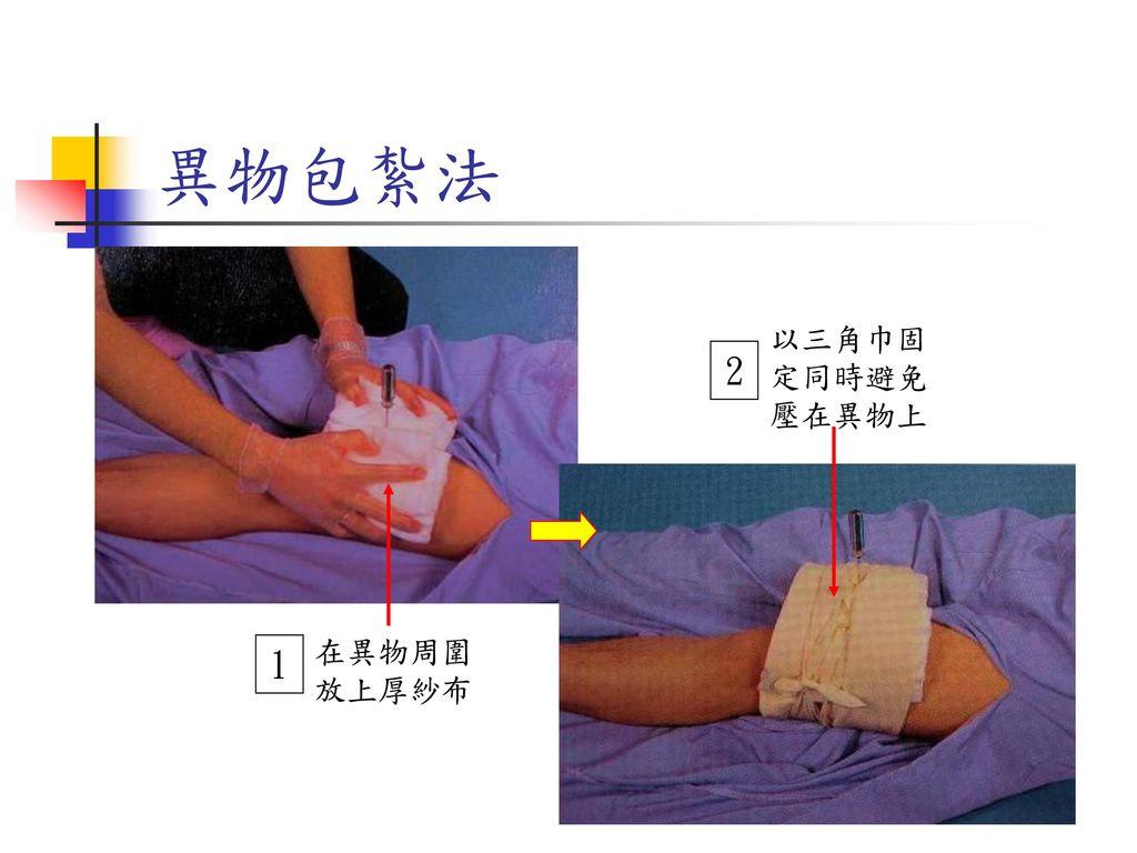 異物包紮法 以三角巾固定同時避免壓在異物上 2 固定但不壓迫 在異物周圍放上厚紗布 1
