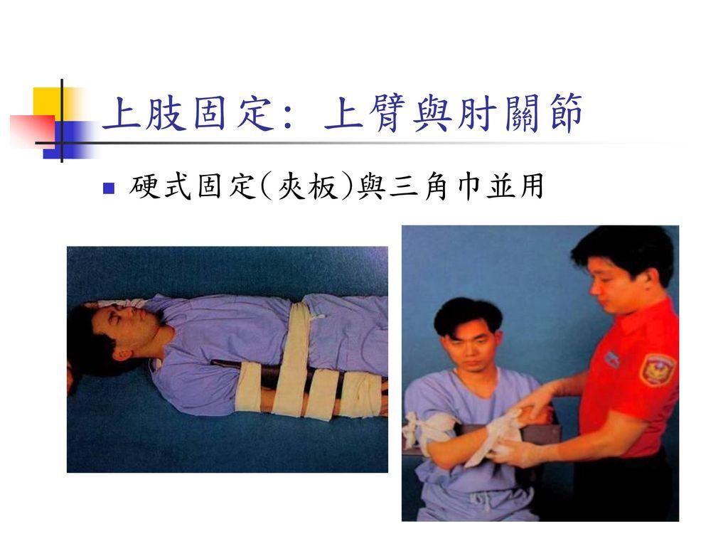 上肢固定: 上臂與肘關節 硬式固定(夾板)與三角巾並用
