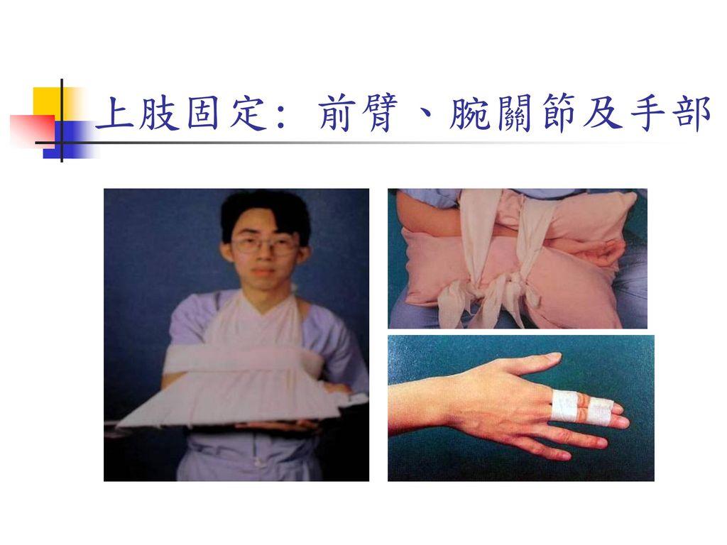 上肢固定: 前臂、腕關節及手部