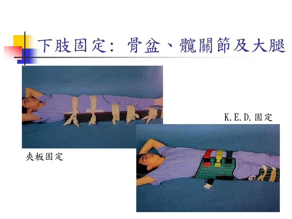 下肢固定: 骨盆、髖關節及大腿 K.E.D.固定 夾板固定