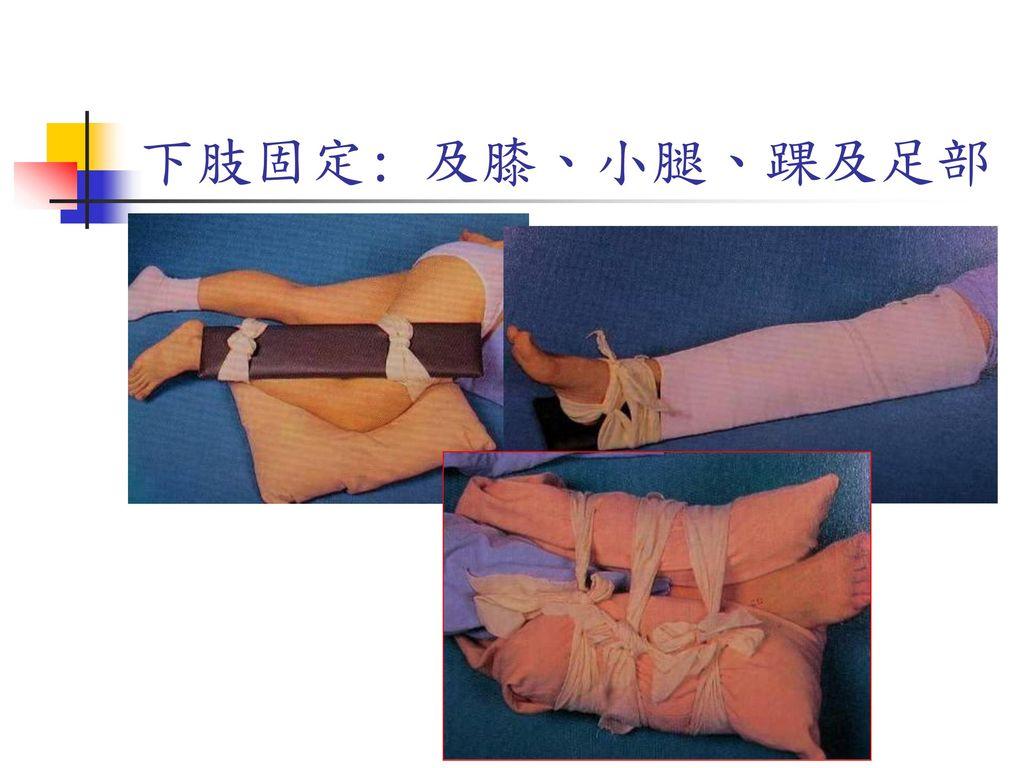 下肢固定: 及膝、小腿、踝及足部 踝關節以軟式固定為主