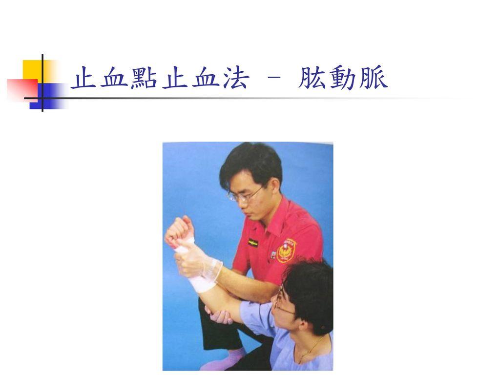 止血點止血法 - 肱動脈