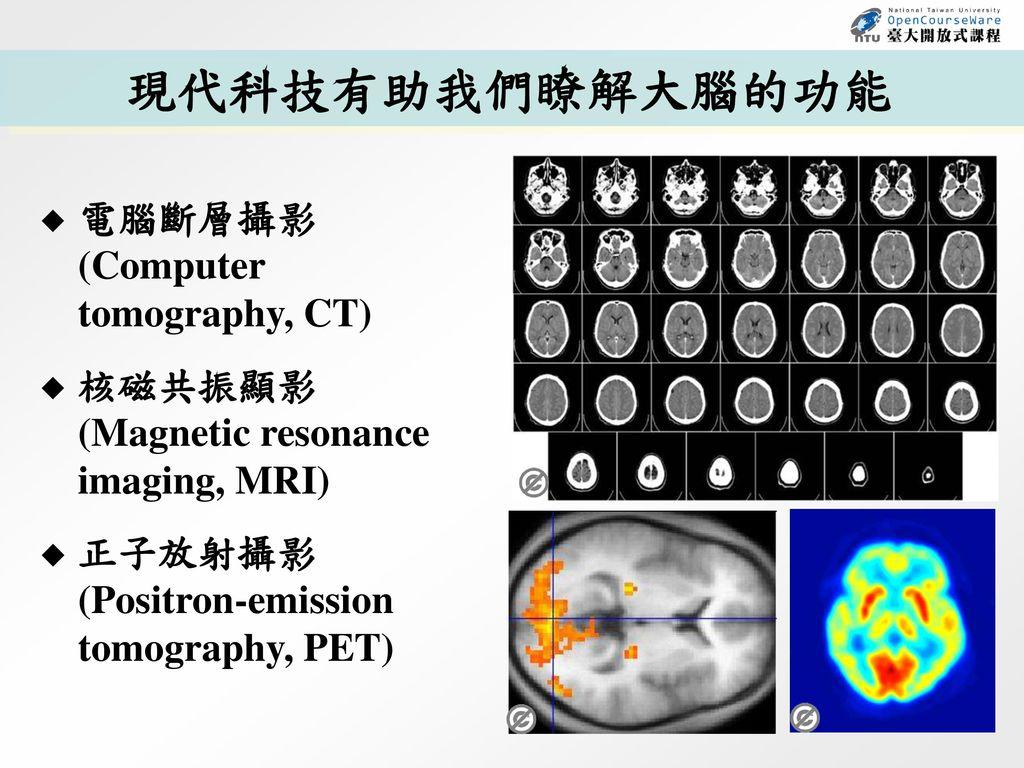 現代科技有助我們瞭解大腦的功能 電腦斷層攝影 (Computer tomography, CT)