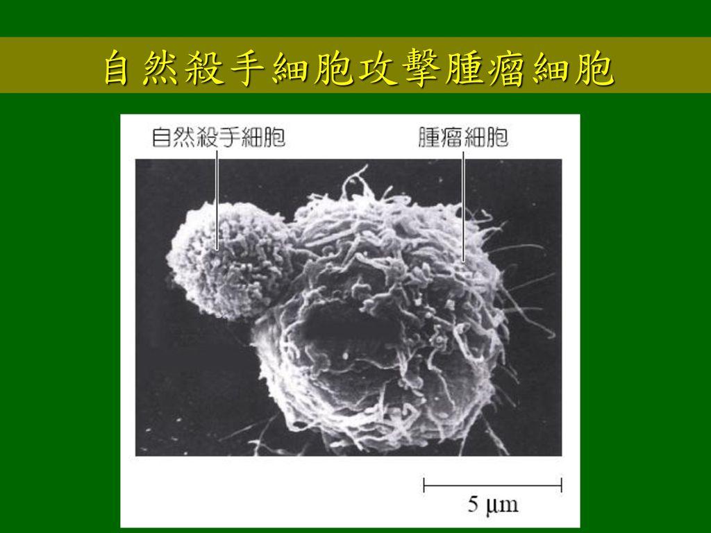 自然殺手細胞攻擊腫瘤細胞