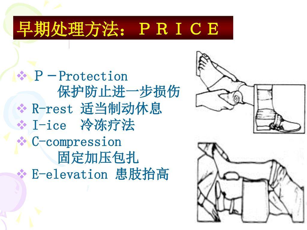 早期处理方法:PRICE P-Protection 保护防止进一步损伤 R-rest 适当制动休息 I-ice 冷冻疗法