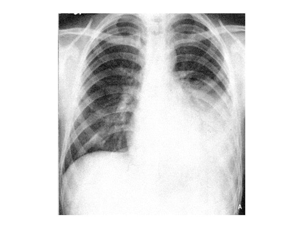 肺炎 真菌 性