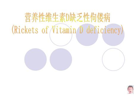 (Rickets of Vitamin D deficiency)