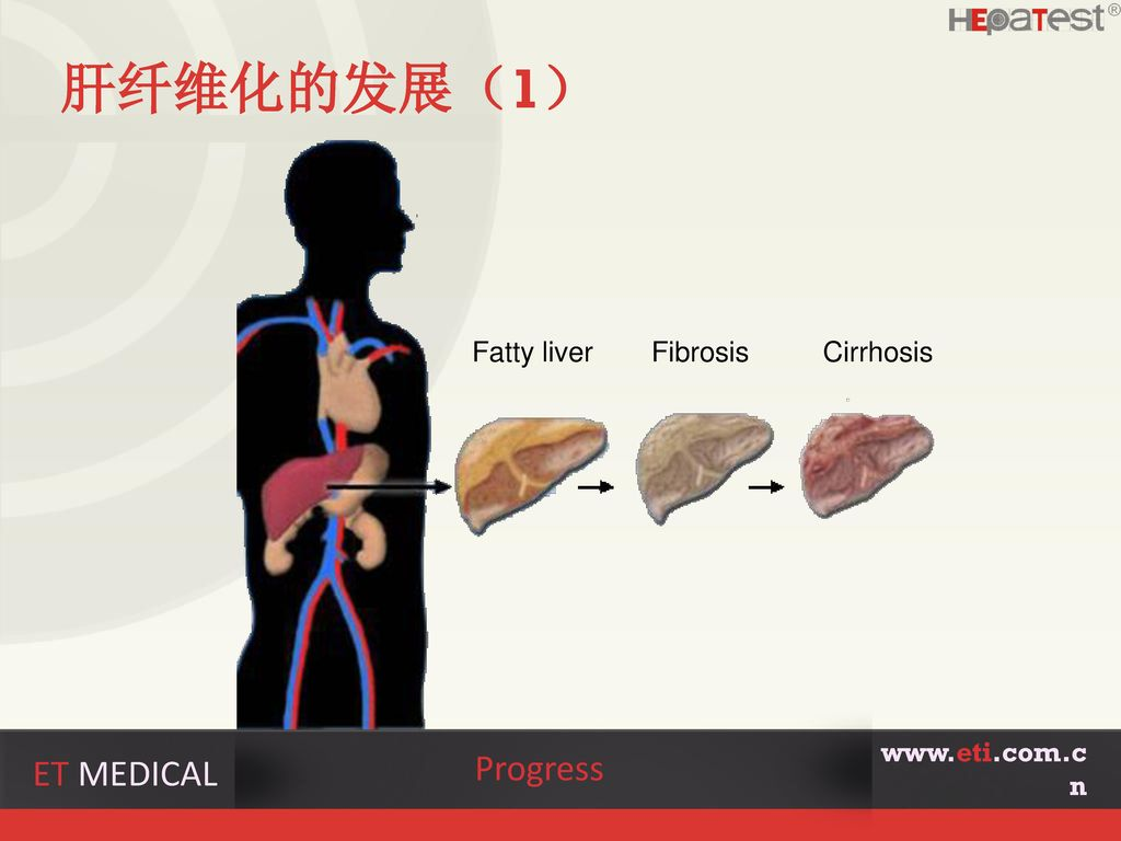 肝纤维化的发展(1) Progress ET MEDICAL Fatty liver Fibrosis Cirrhosis
