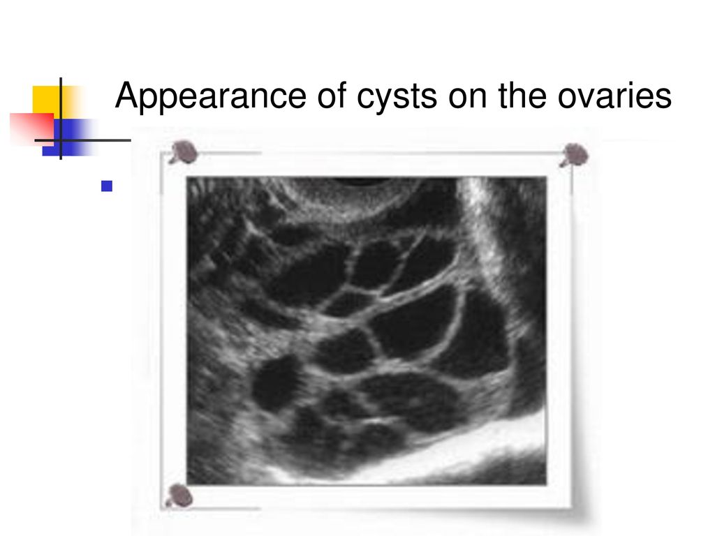 Appearance of cysts on the ovaries
