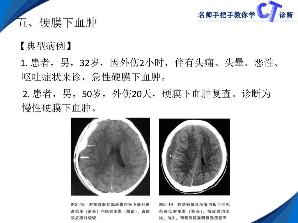 膜 下 血腫 症状 硬 急性