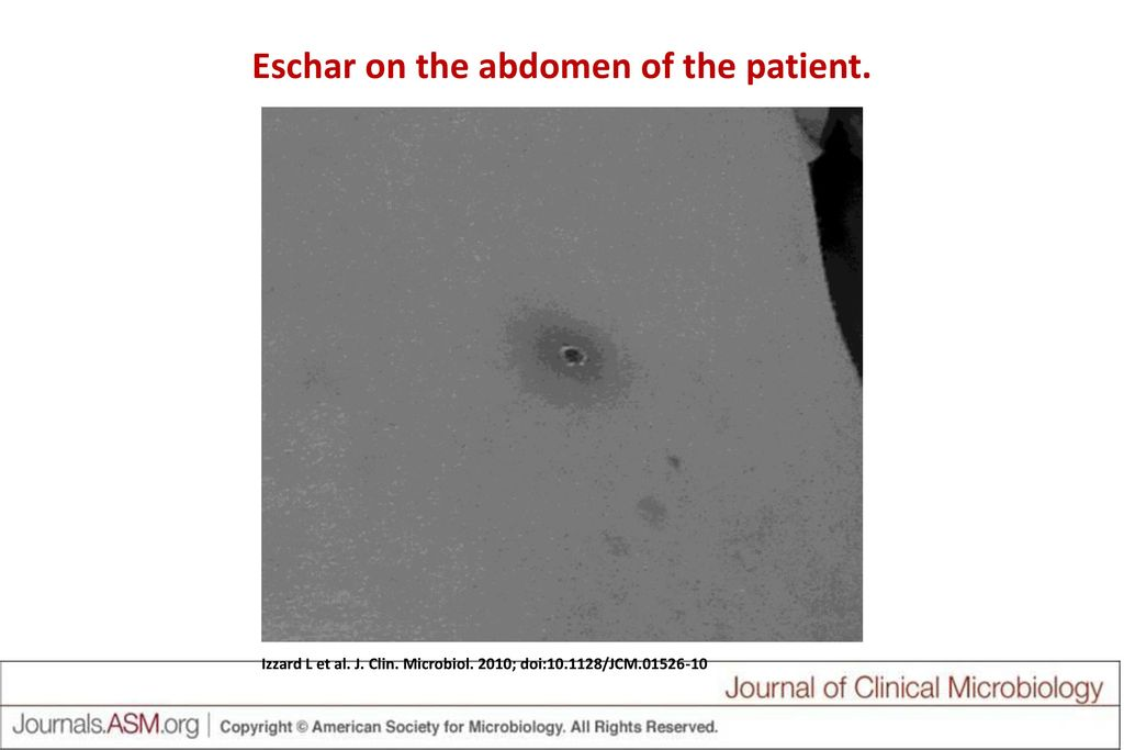 Eschar on the abdomen of the patient.